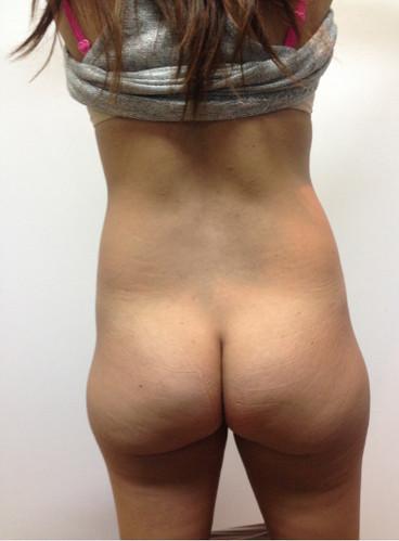 Liposucción_#3.jpg
