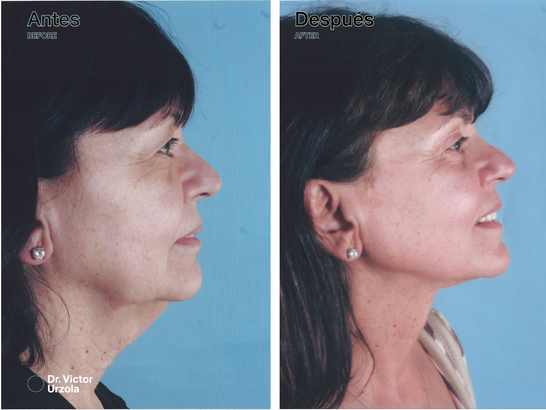 NECK LIFT (2).png