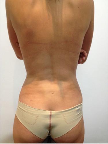 Liposucción #4-2.jpg