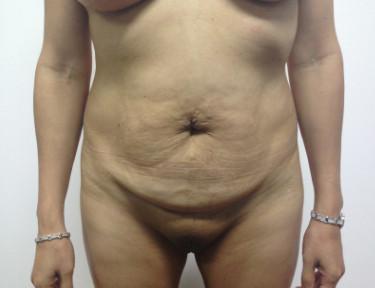 Abdominoplastia #4.jpg