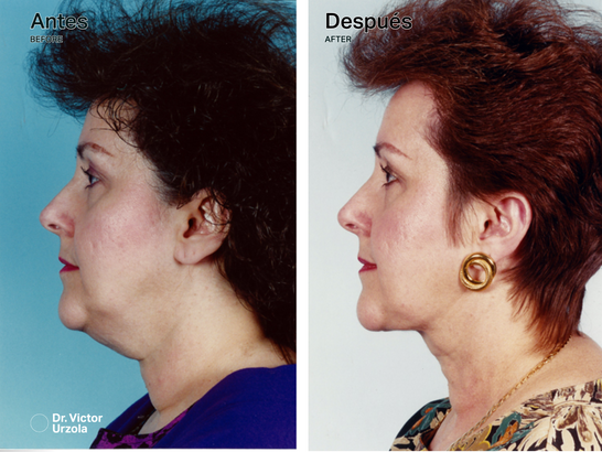 NECK LIFT (6).png