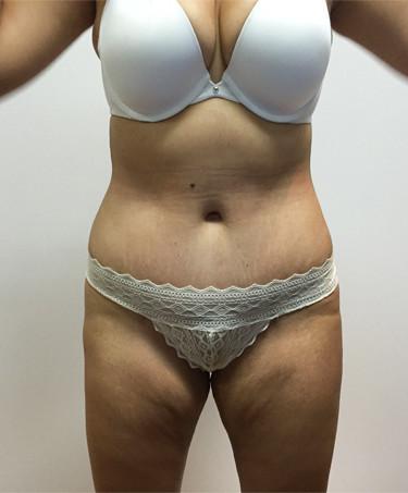 Abdominoplastia #1-2.jpg