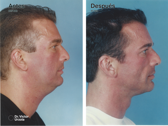 NECK LIFT (8).png