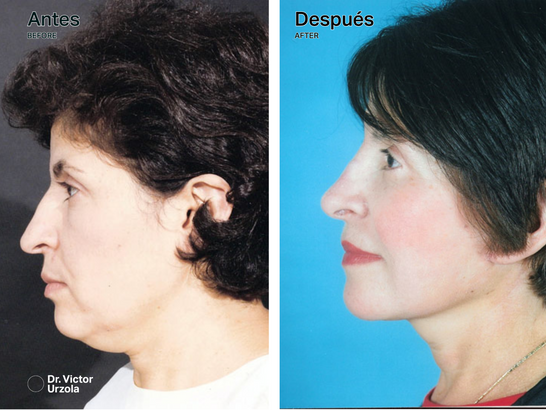 NECK LIFT (7).png