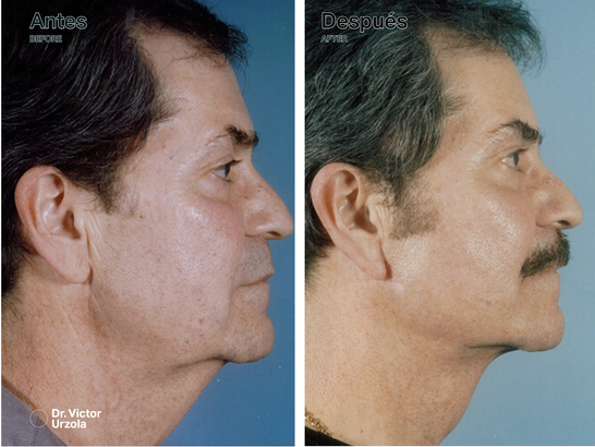 NECK LIFT (1).png