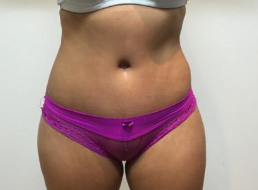 Abdominoplastia #3-2.jpg