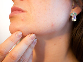 Dermatologists link skin issues to COVID-19