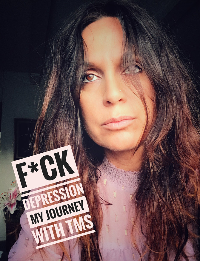 My Journey with Depression + TMS - Week 1