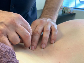 Dry needling or acupuncture? What's the difference?