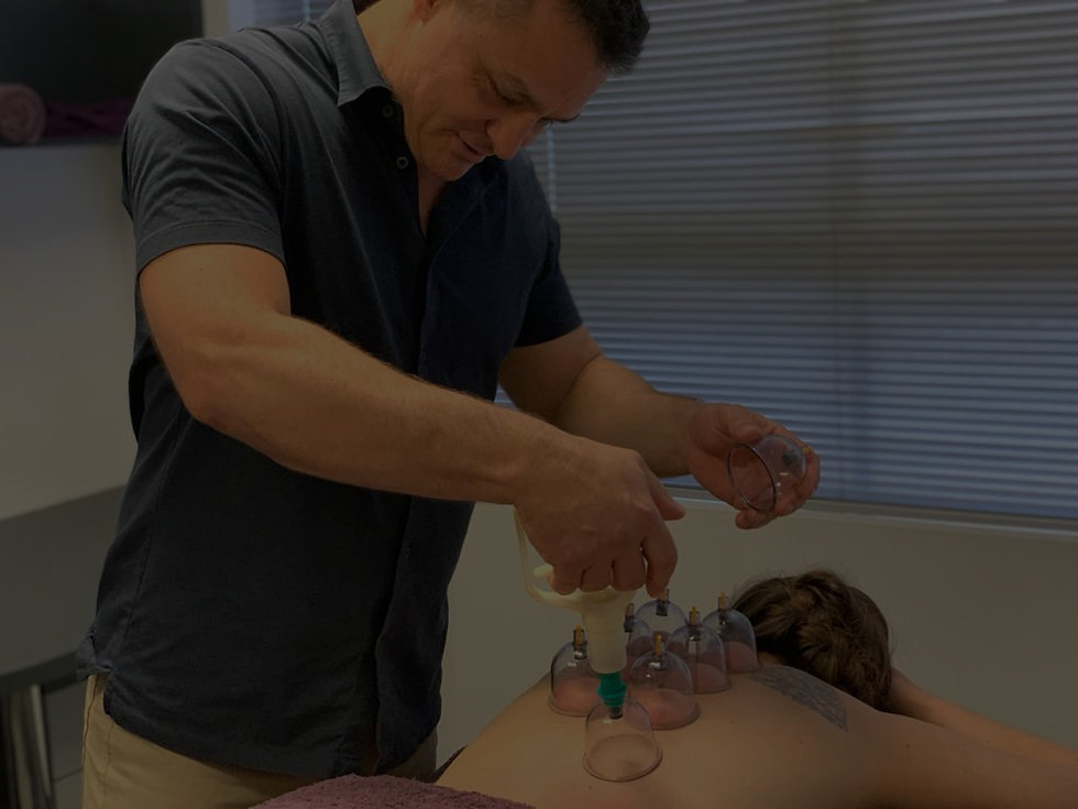 Cupping Bowen Hills Acupuncture