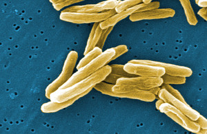 New WHO report warns of serious lack treatment for antibiotic-resistant infections, particularly dru