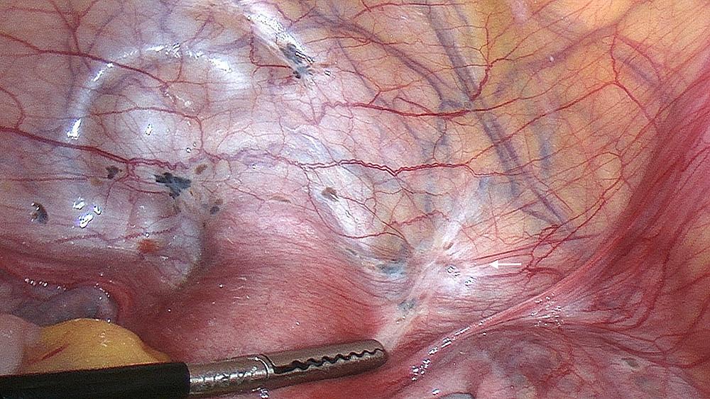 Fig. 1: Endometriosis along the anterior cul de sac (classic black, brown and white lesions)