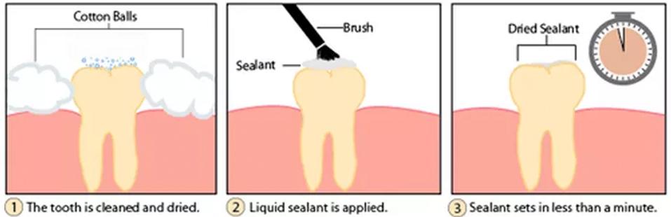 Sealants.png