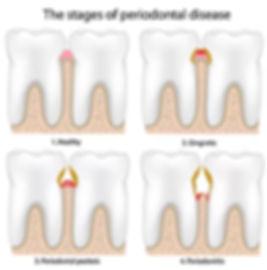 Periodonatl Disease.jpg