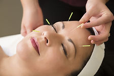 cosmetic-acupuncture-istock-510633213-co
