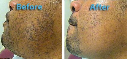 Deep Cleansing Facial Oil