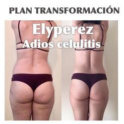 Difíciles de hacer es conseguir eliminar la celulitis de nuestro cuerpo, se instala rápido, y se va