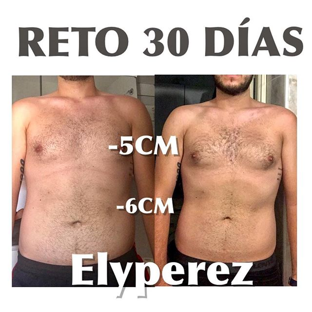 _ Reducción del perímetro del estomago__ Reducción del perímetro de la caja torácica dando forma al