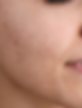 Toner for dry skin, oily skin, combination skin, sensitive skin. Good toner for all skin types.
