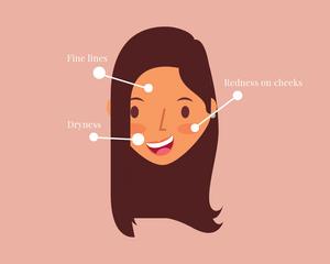 Fine lines, redness on cheeks, dryness skin concerns