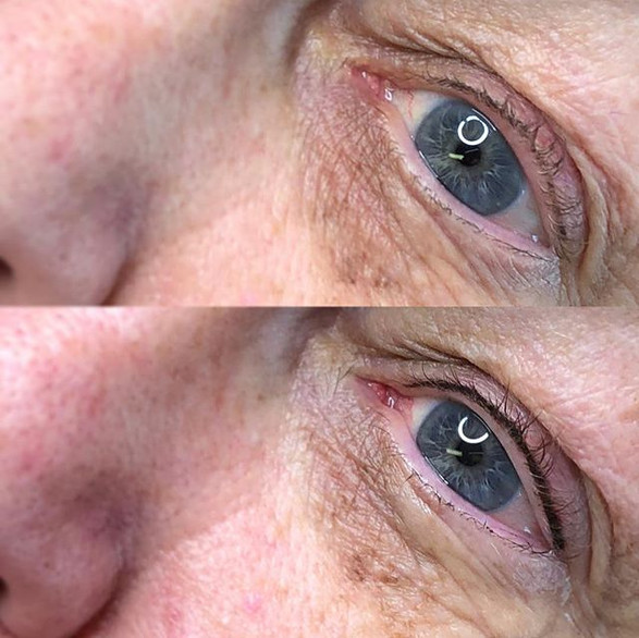 two years healed lash enhancement & after refresh