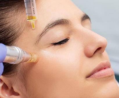 Plasma pen, trattamento viso needling