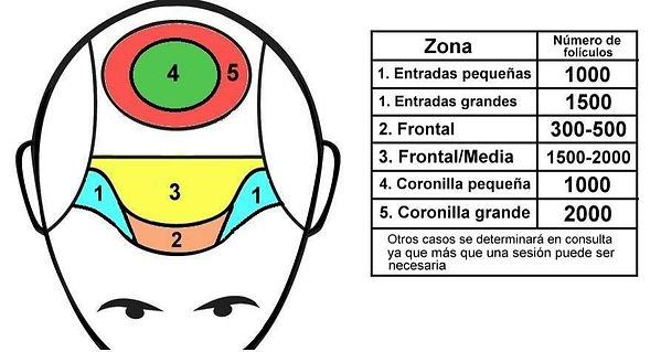 Estibel Capilar | Implante Capilar en Córdoba | Precios Técnica FUE