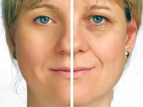 Mesoterapia Facial + Botox