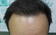Estibel Capilar | Implante Capilar en Córdoba | Técnca FUE