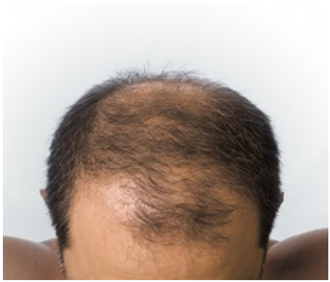 Tratamiento de Alopecia PRP   Clínica estética Estibel Córdoba