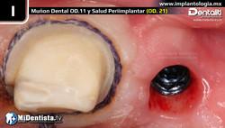 mplantes_dentales_salamanca_guanajuato_dr_jesus_omar_noriega_gutierrez_especialista_endodoncia_prote