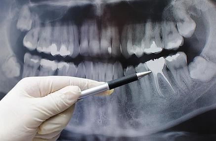 2 endodoncia tratamiento endodontico tra
