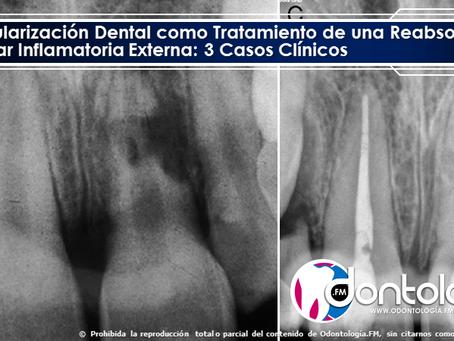 Revascularización Dental como Tratamiento de una Reabsorción Radicular Inflamatoria Externa: Reporte
