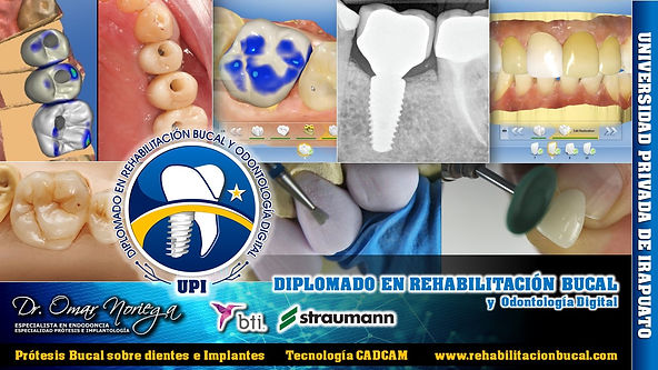 Diplomado Rehabilitacion Bucal y Odontol