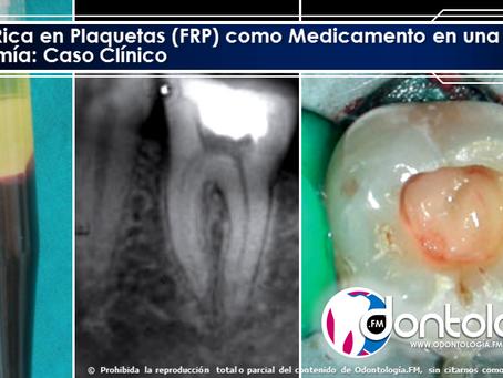 Fibrina Rica en Plaquetas (FRP) como Medicamento en una Pulpotomía: Caso Clínico