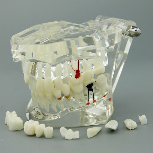 Modelo Dental Endo-Prótesis Implantes