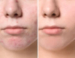 young-woman-before-after-acne-260nw-1146