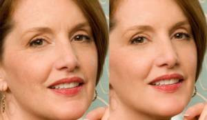 PRP FACIAL REJUVENATION THERAPY