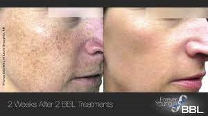 FOREVER YOUNG BBL IS CLINICALLY PROVEN TO REVERSE AGING–WITH NO DOWNTIME