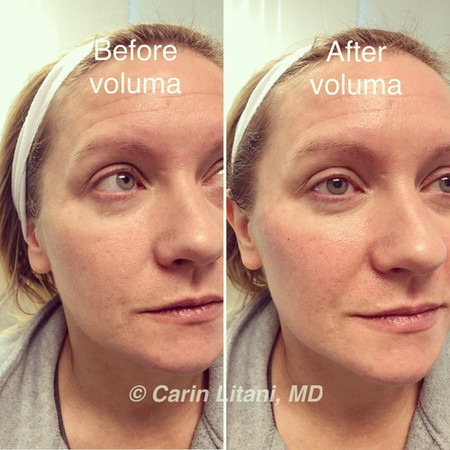Cheek augmentation with voluma (before/after)