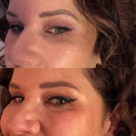 Dr Litani's Botox