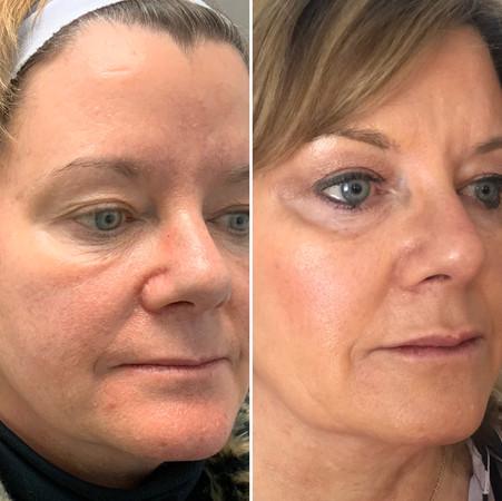 Filler for volume restoration and facial balance.
