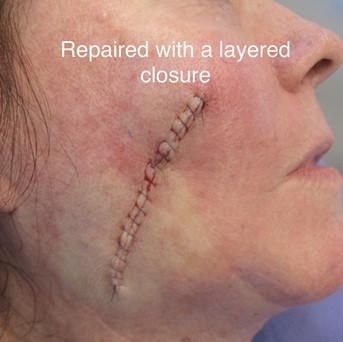Layered closure 4