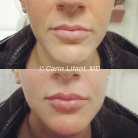 Lip filler (before/after)
