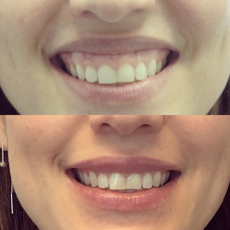Botox for gummy smile (before/after)