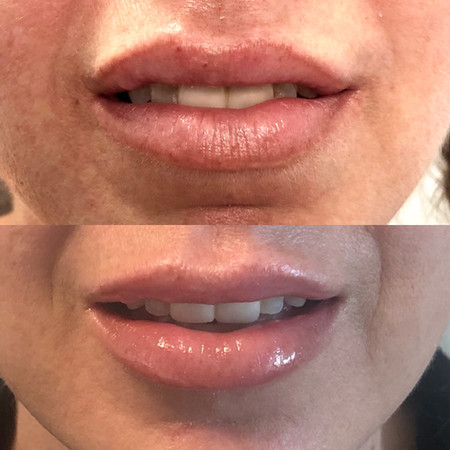 Return to symmetry with lip filler