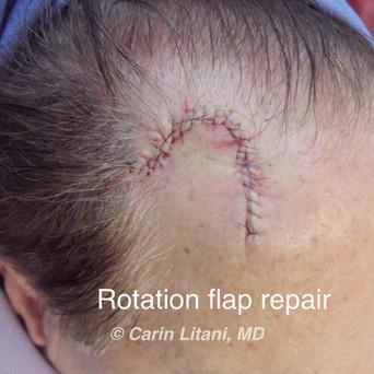 Flap repair 3