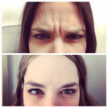 Botox in the glabella (before/after)