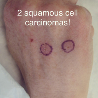 2 cancers, one flap! (1)