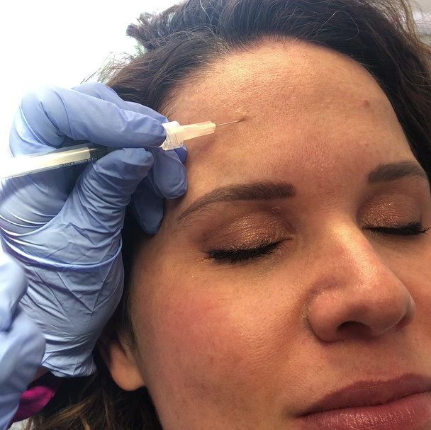 Dr Litani gets a cortisone shot in her pimples!